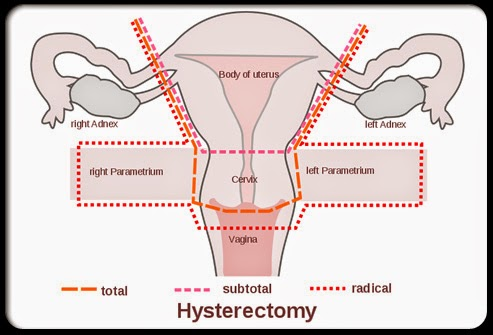 hysterectomy surgery sex after in Derby